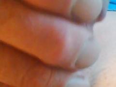 My Swollen Glans