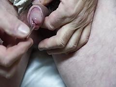 glas insertion