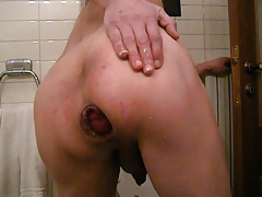 anal pump and prolapse